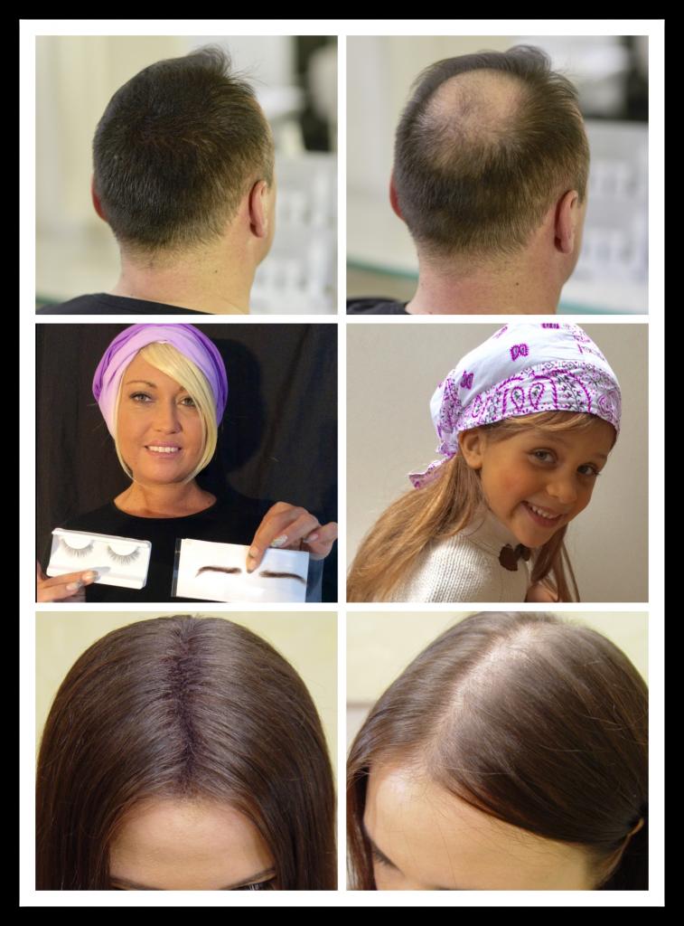 Collage Haarersatz, Haarergänzung und Perücken