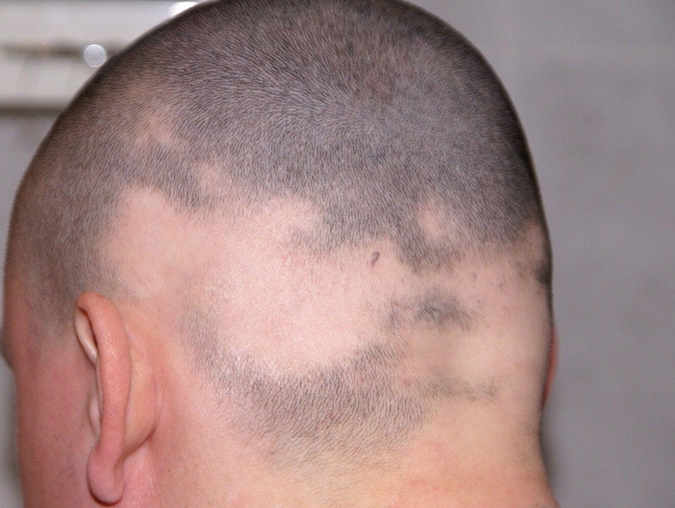 Alopezia Areata